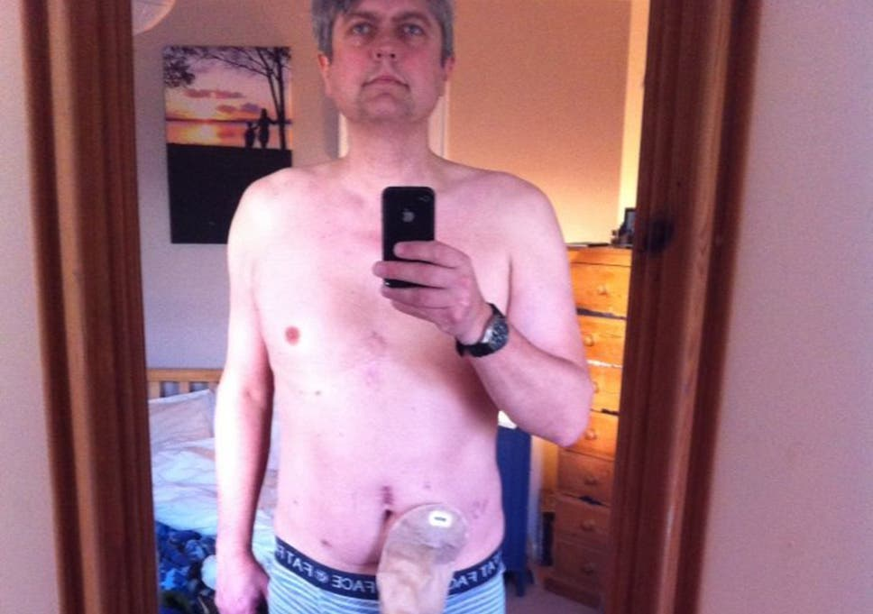 Father-of-two with prostate cancer takes colostomy selfie to
