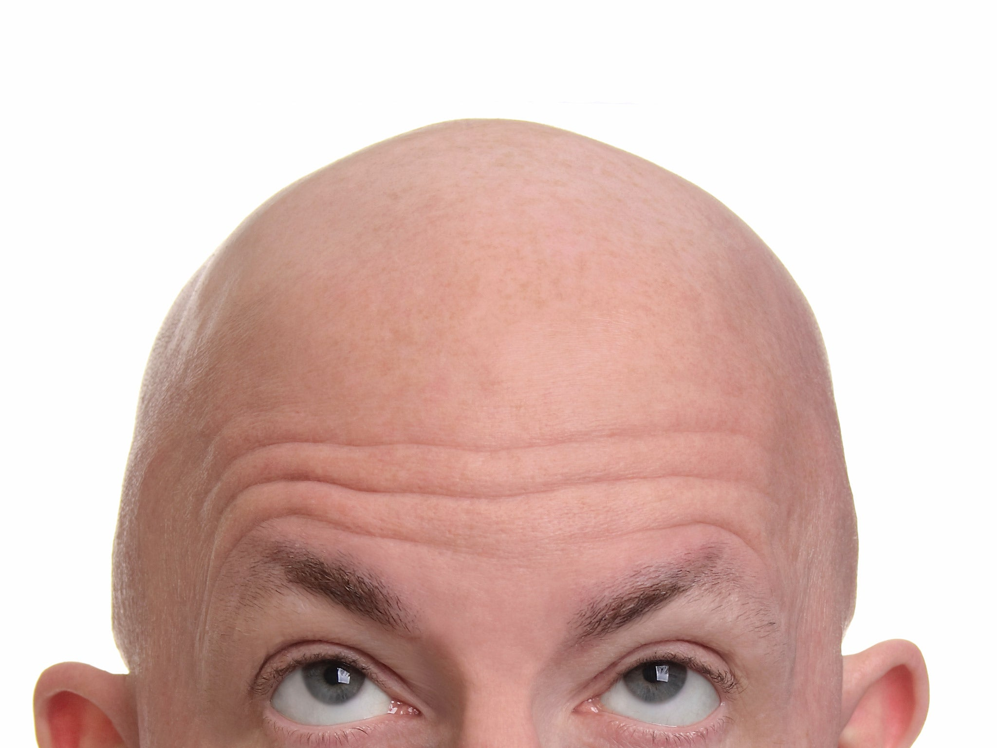 But First What is Male Pattern Baldness