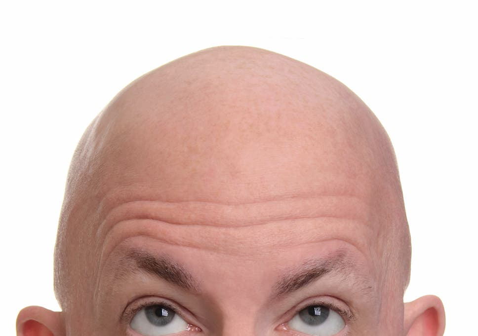In Autism Brain Shows Unusual Thinning >> Baldness And Thinning Hair Are Due To Aging Dna Study Finds The