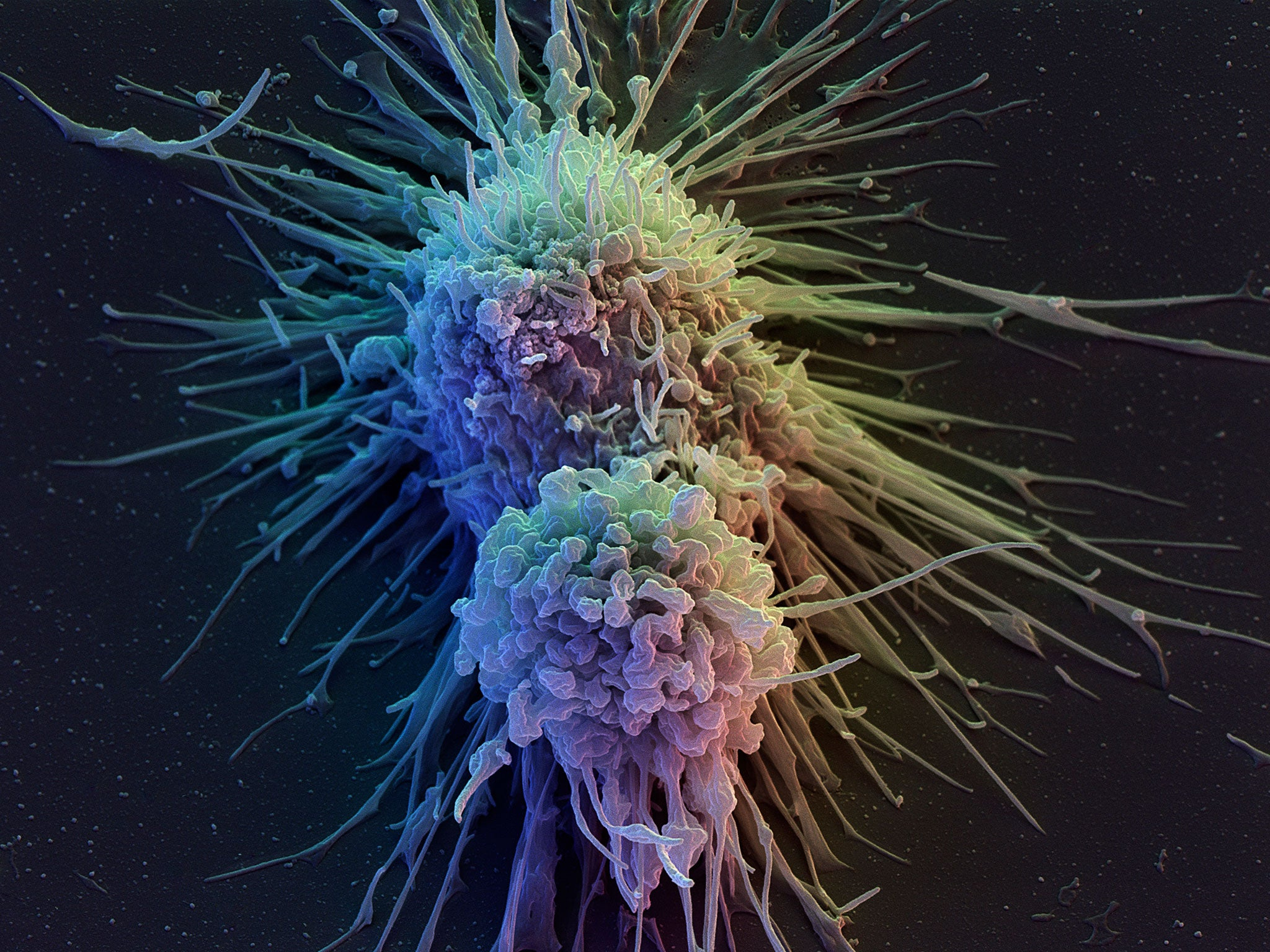 T-cell therapy: Pioneering cancer treatment could protect ... - photo#11