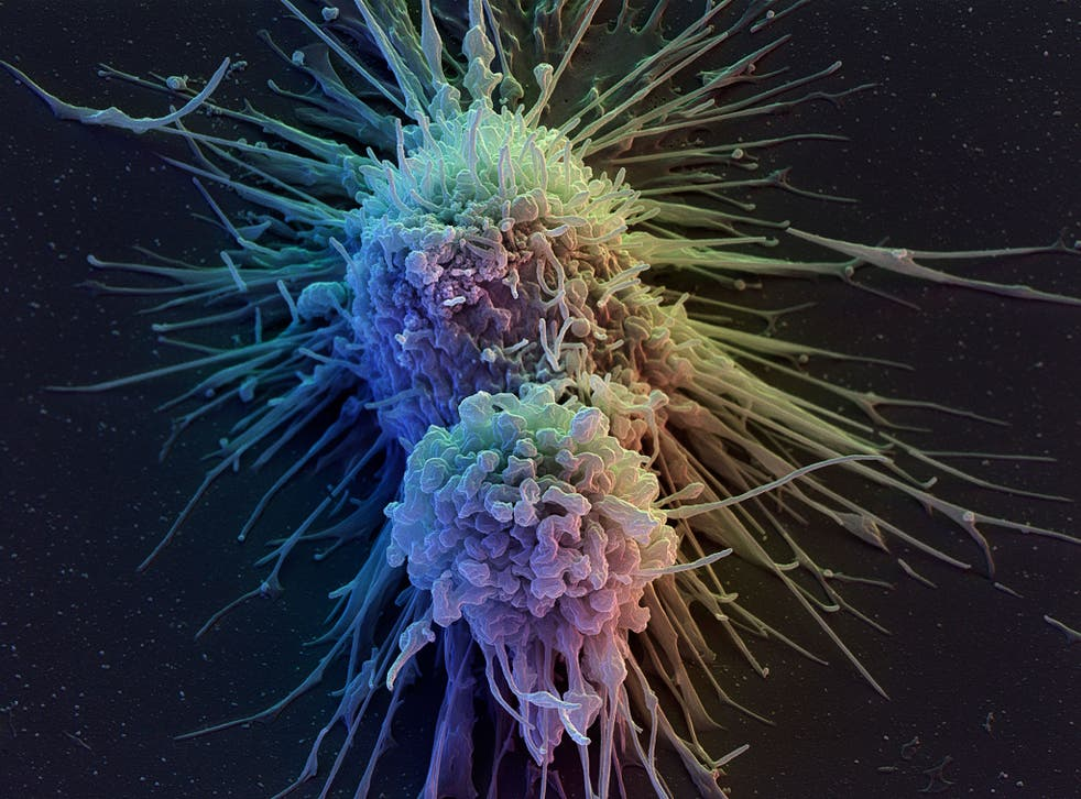 Lymphoblast cells eventually become lymphocytes, cells that are responsible for fighting infection, such as T-Cells