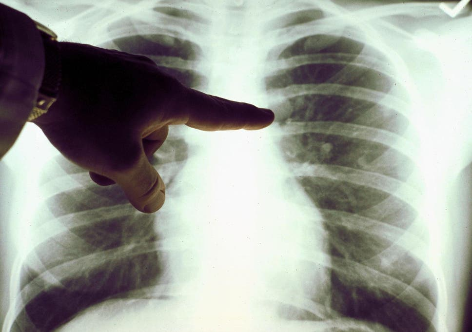 Smokers who undergo a CT scan of their lungs are more likely