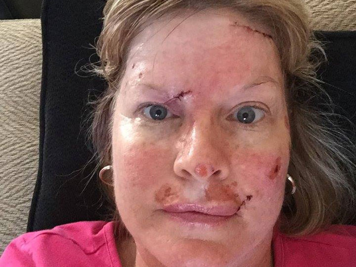 Woman Shares Shocking Selfies Showing Recovery From Skin Cancer Surgery In Warning Against Sunbeds And Not Using Suncream The Independent The Independent