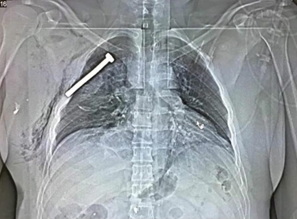 X-ray from victim of Brussels attacks shows a nail embedded in their chest