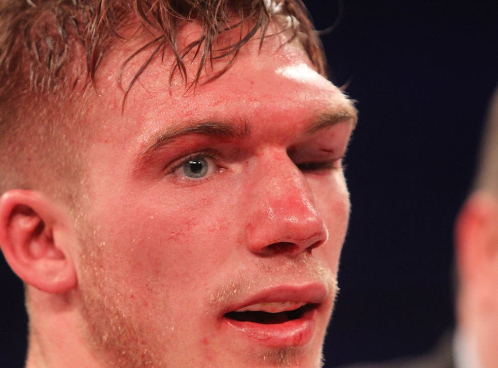 Nick Blackwell's eye injury during his fight with Chris Eubank Jnr