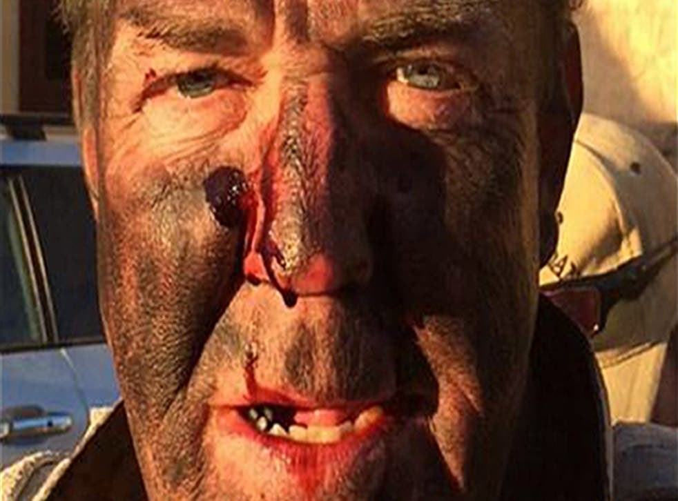 Jeremy Clarkson after 'the most dangerous stunt' he's ever attempted