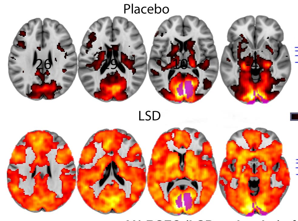 LSD makes the brain more 'complete', scientists say as they claim to have  unlocked secrets of hallucinogenic drugs | The Independent | The Independent