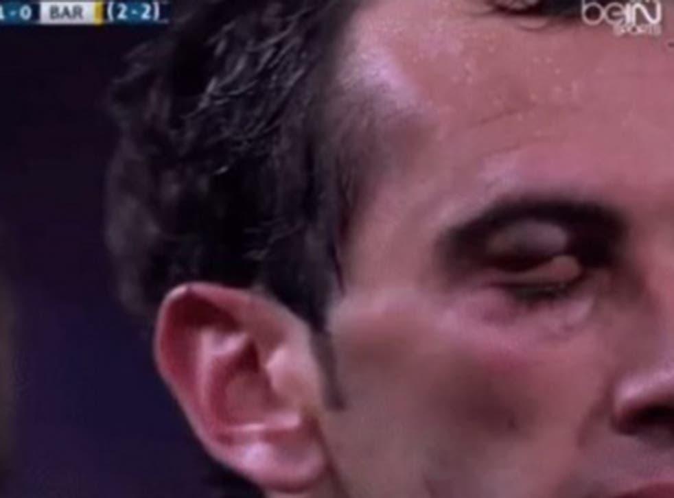 Diego Godin's eye after the Luis Suarez clash