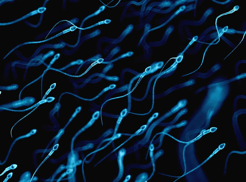 Medically accurate illustration of human sperm cells