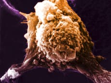 Human trials start with cancer treatment that primes immune