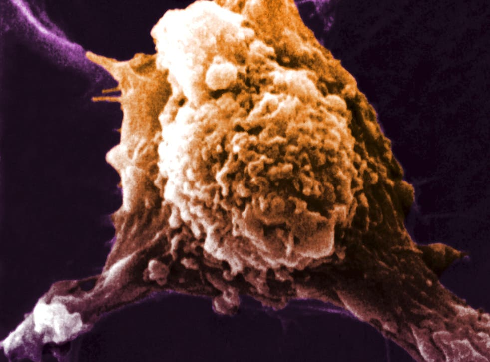 The vaccine prompted the body to make killer T-cells designed to attack cancer cells like the one above