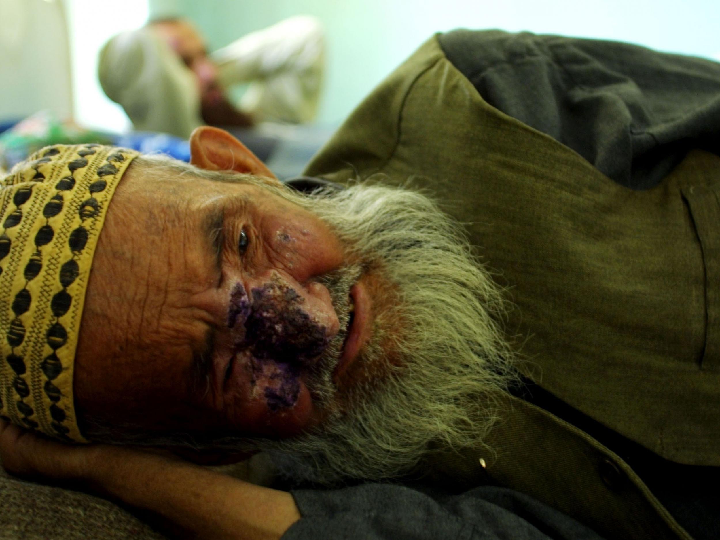 Cutaneous leishmaniasis: Disfiguring tropical disease sweeps across Middle East