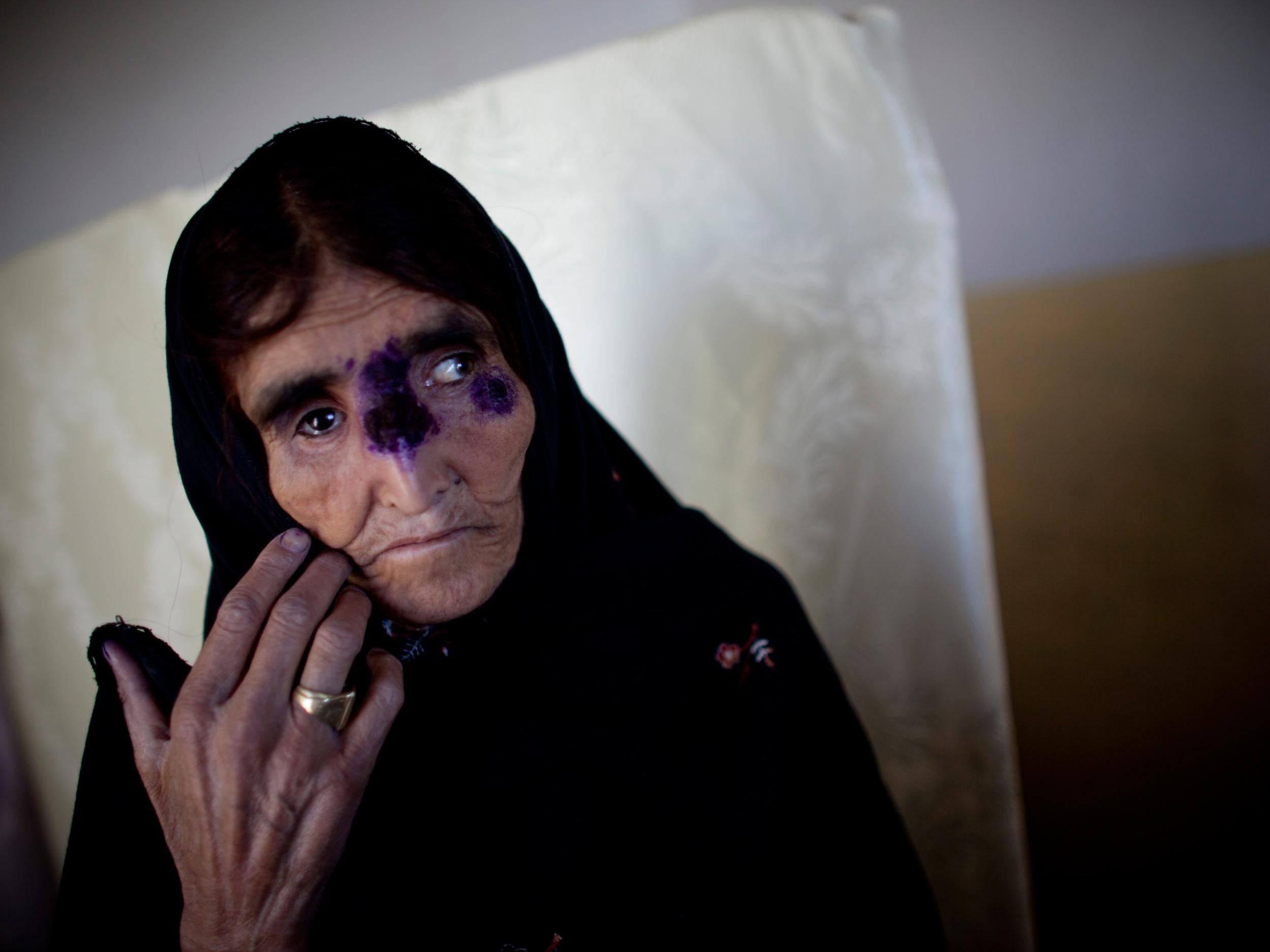 skin disease dating The woman reportedly developed symptoms of the disease and said she feels her health and body  infants can pick up a herpes infection from skin-to-skin or mouth.