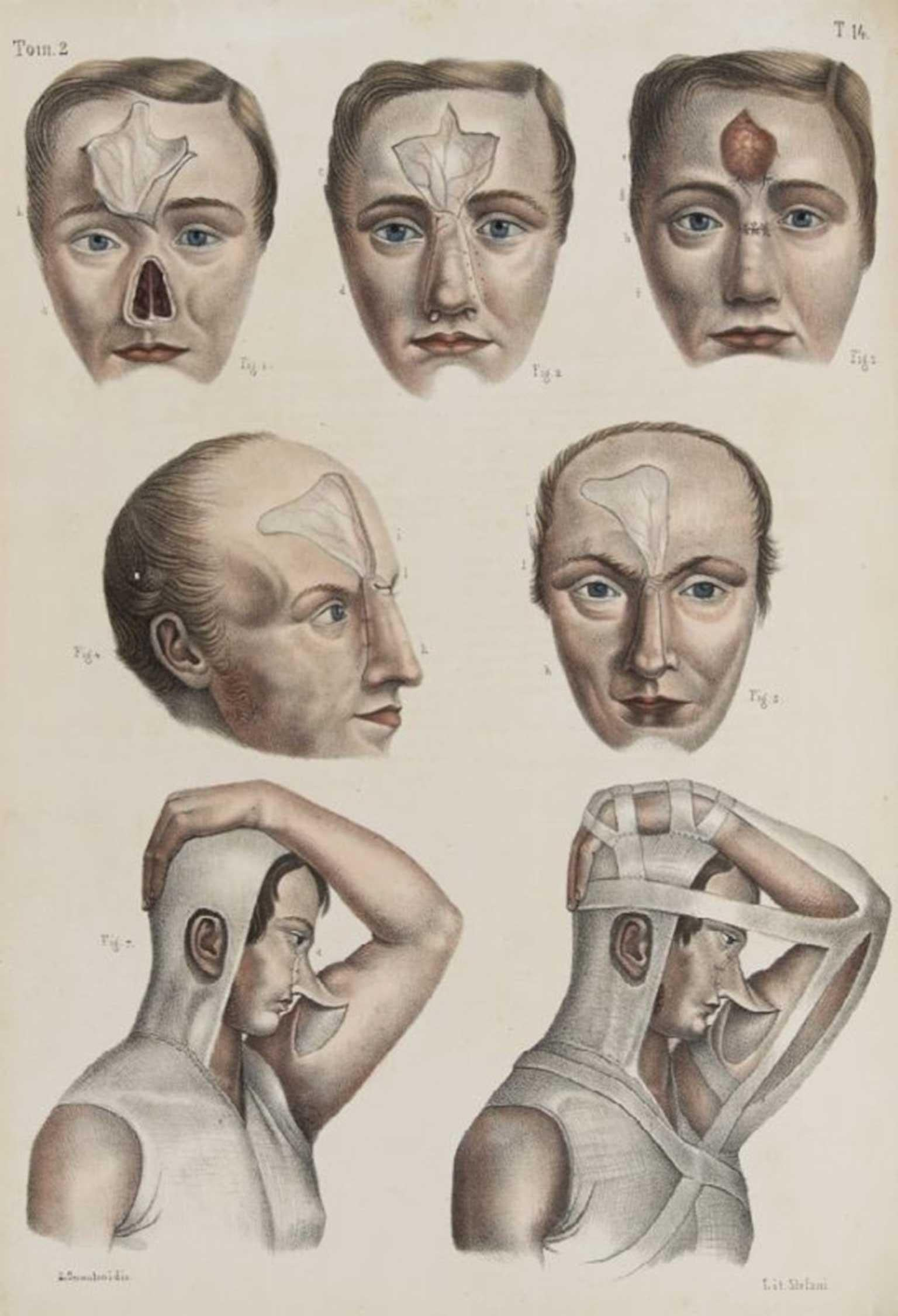 The ugly history of cosmetic surgery | The Independent