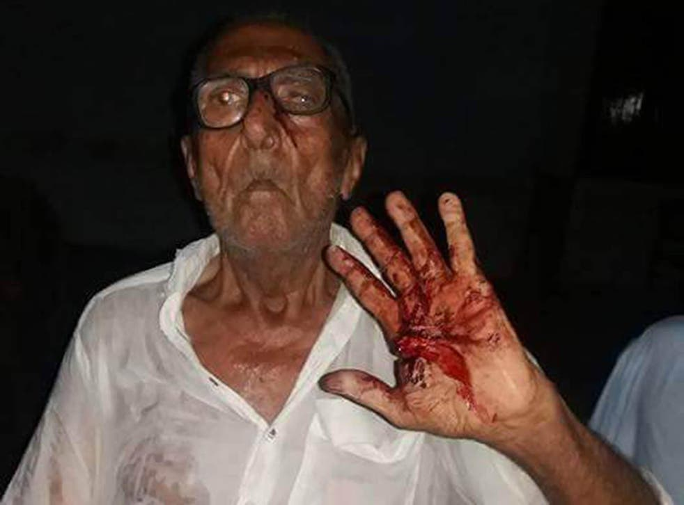 Gokal Das covered in blood after he was attacked for eating biryani