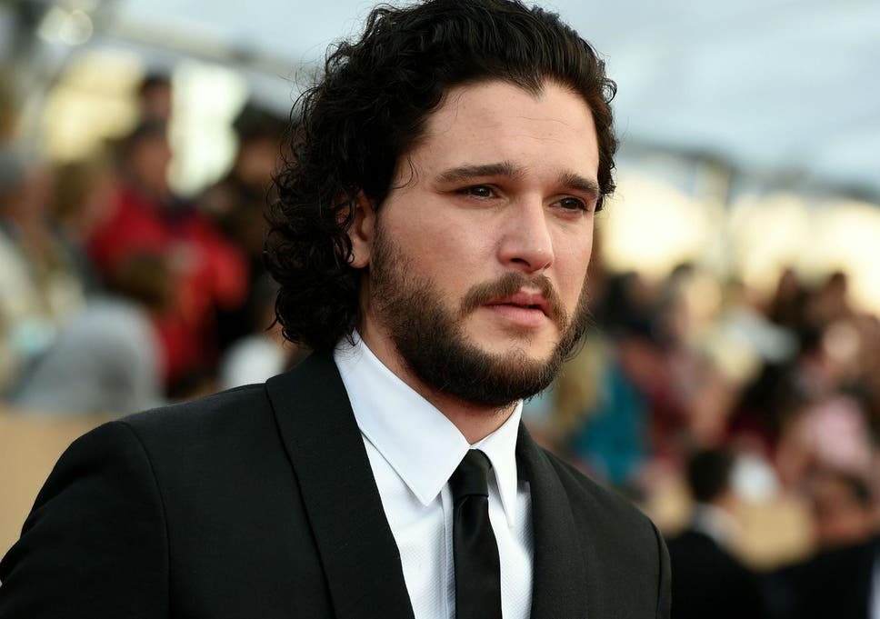 Kit Harington Turned Up To Game Of Thrones Audition With Black Eye