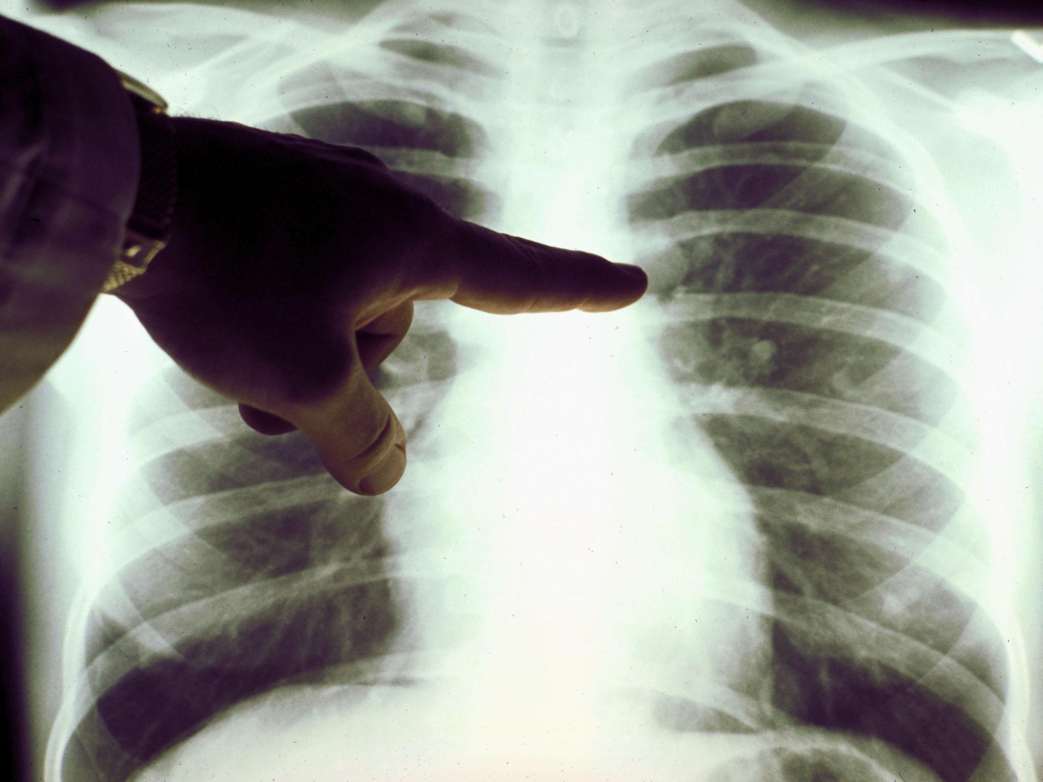 NHS radiology to be reviewed after hospital causes 'significant harm' to cancer patients