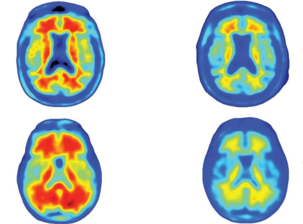 The brains of Alzheimer's patients, showing how different doses of the drug reduced the number of amyloid plaques, in red, over a year