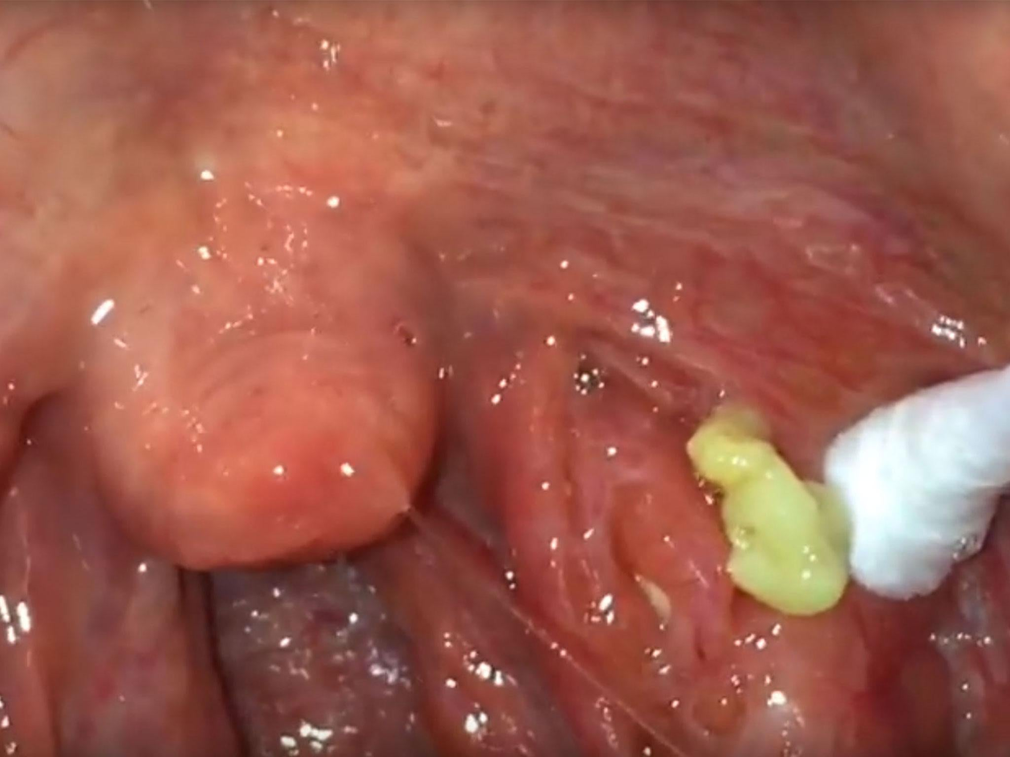 Meet the bizarre Reddit community obsessed with digging out tonsil