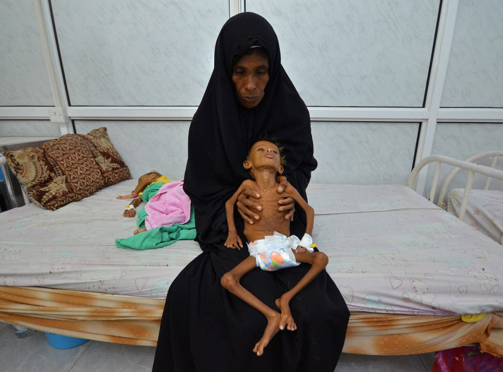 A six-year-old boy is held by his mother as she sits on a bed at a hospital in Hodaida, Yemen, September 2016. More than half of the country's 28-million strong population is suffering from food shortages, the UN says