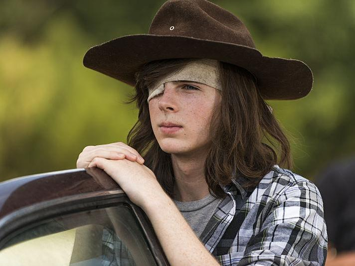 The Walking Dead actor suffering memory loss after horse-riding accident