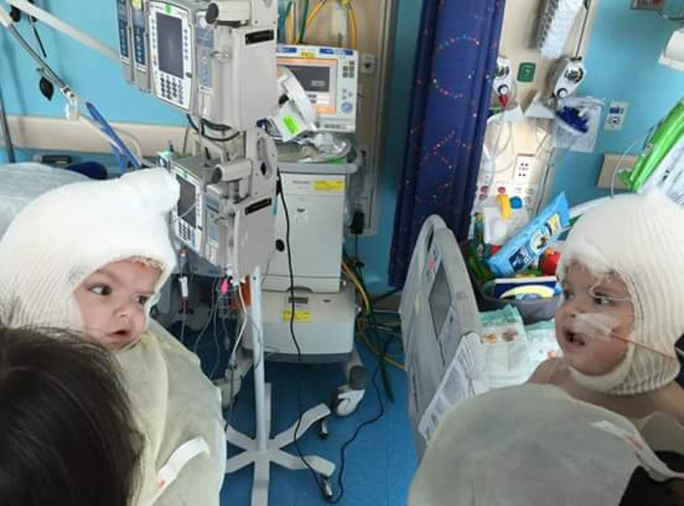 Conjoined twins Jadon and Anias look at each other for the first time after surgery