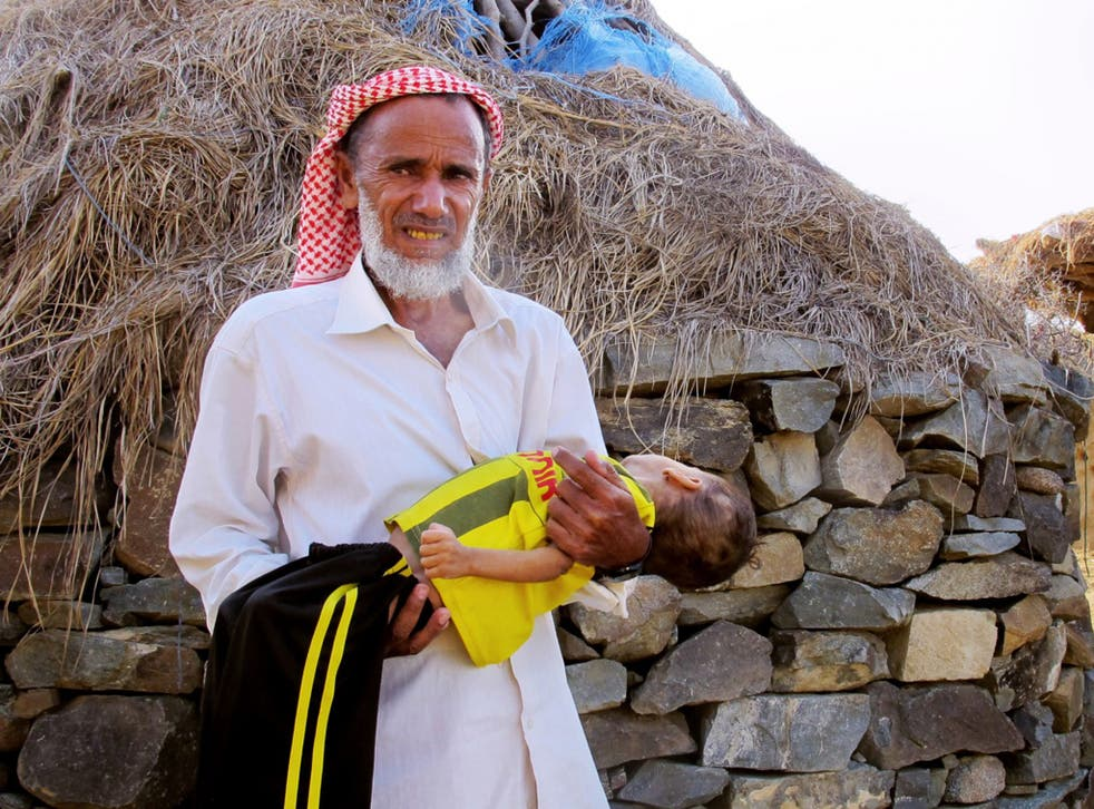 Ahmed Sadek carries his two-year-old grandson, Osama Hassan, in the mountainous area of Bani Saifan, where their village is located. Osama is suffering from severe malnutrition, but his family cannot afford to send him to a hospital