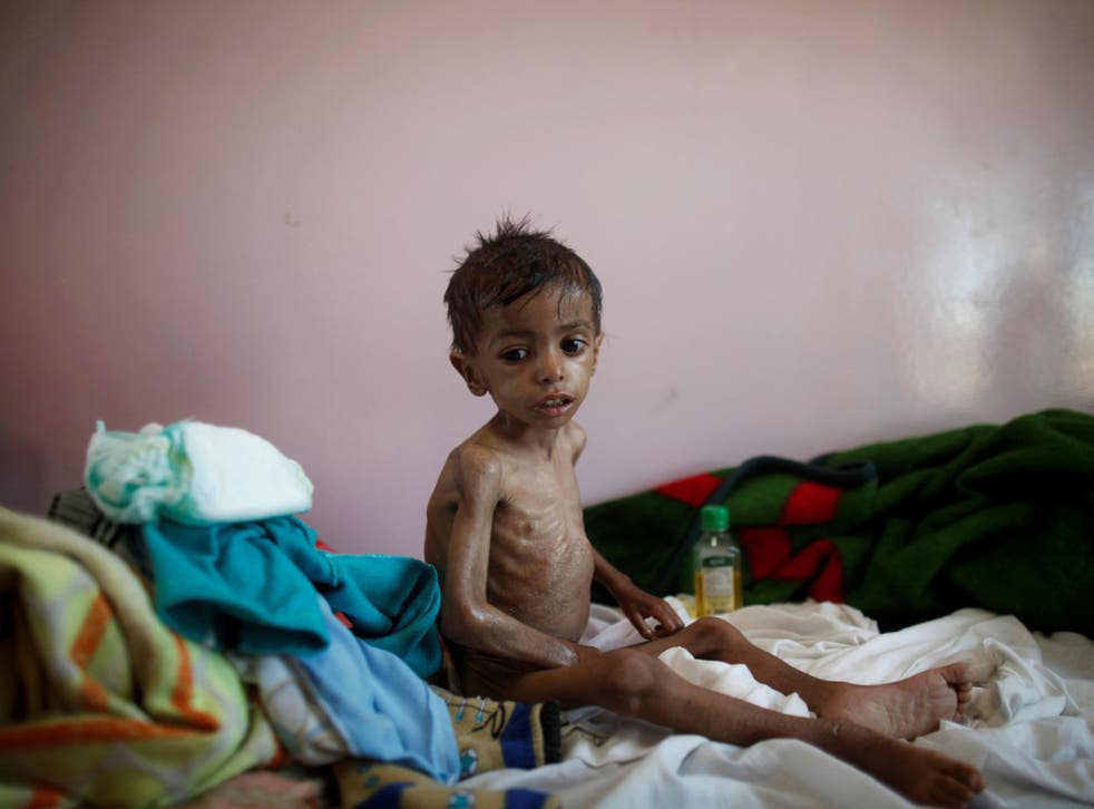 More than 370,000 children are at risk of starvation in Yemen alone