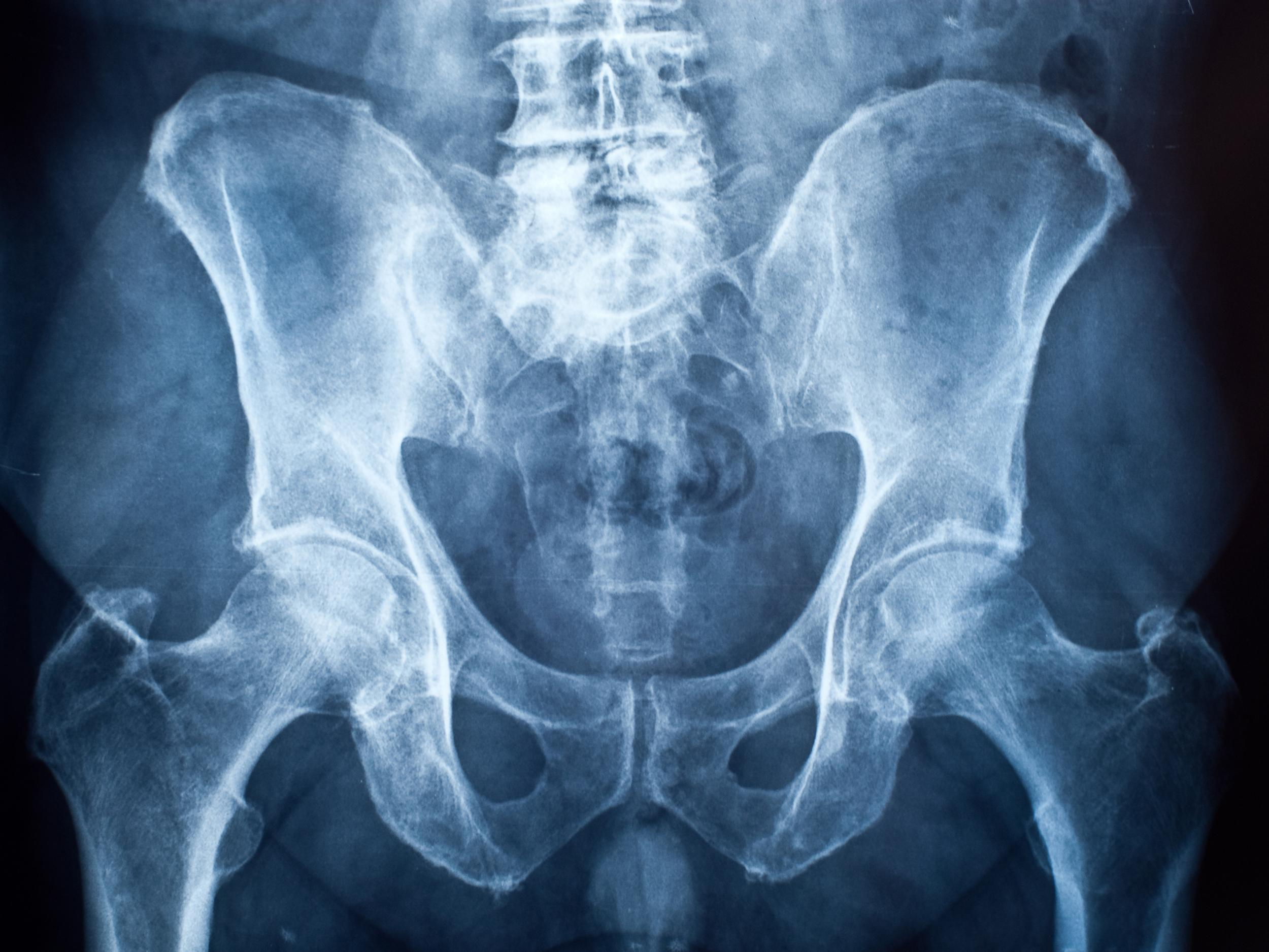 Humans have no penis bone because sex doesn't last long enough, scientists discover