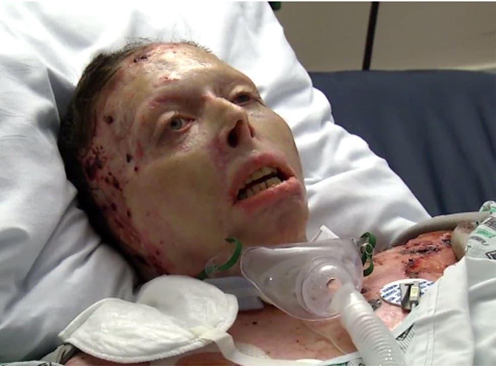 Judy Malinowski was set on fire by her former partner
