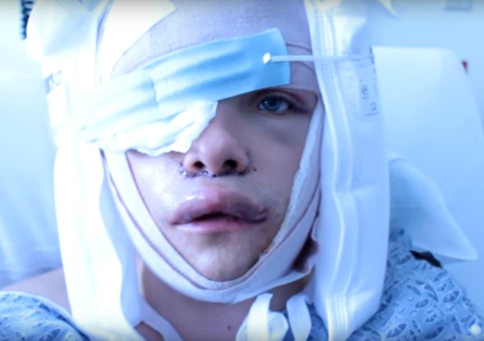 Boy receives facial feminization pic 222