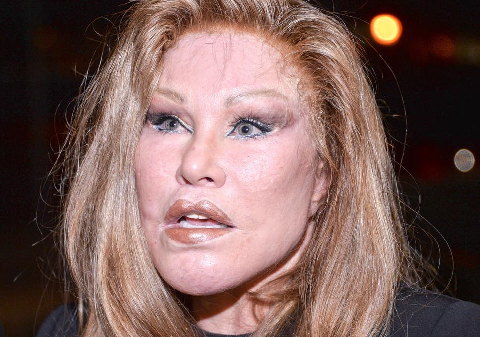 Jocelyn wildenstein before surgery Would Look Like jocelyn