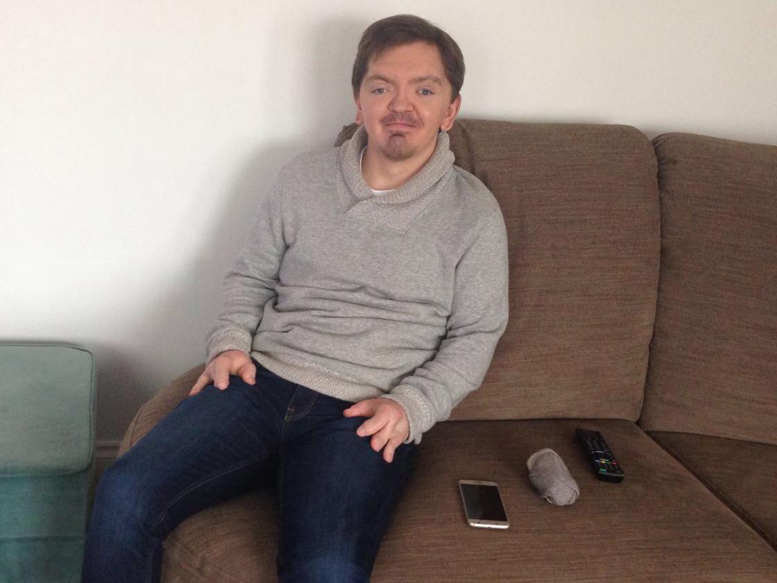 Man with Rare Genetic Condition Apert Syndrome Speaks Out After Becoming a Meme