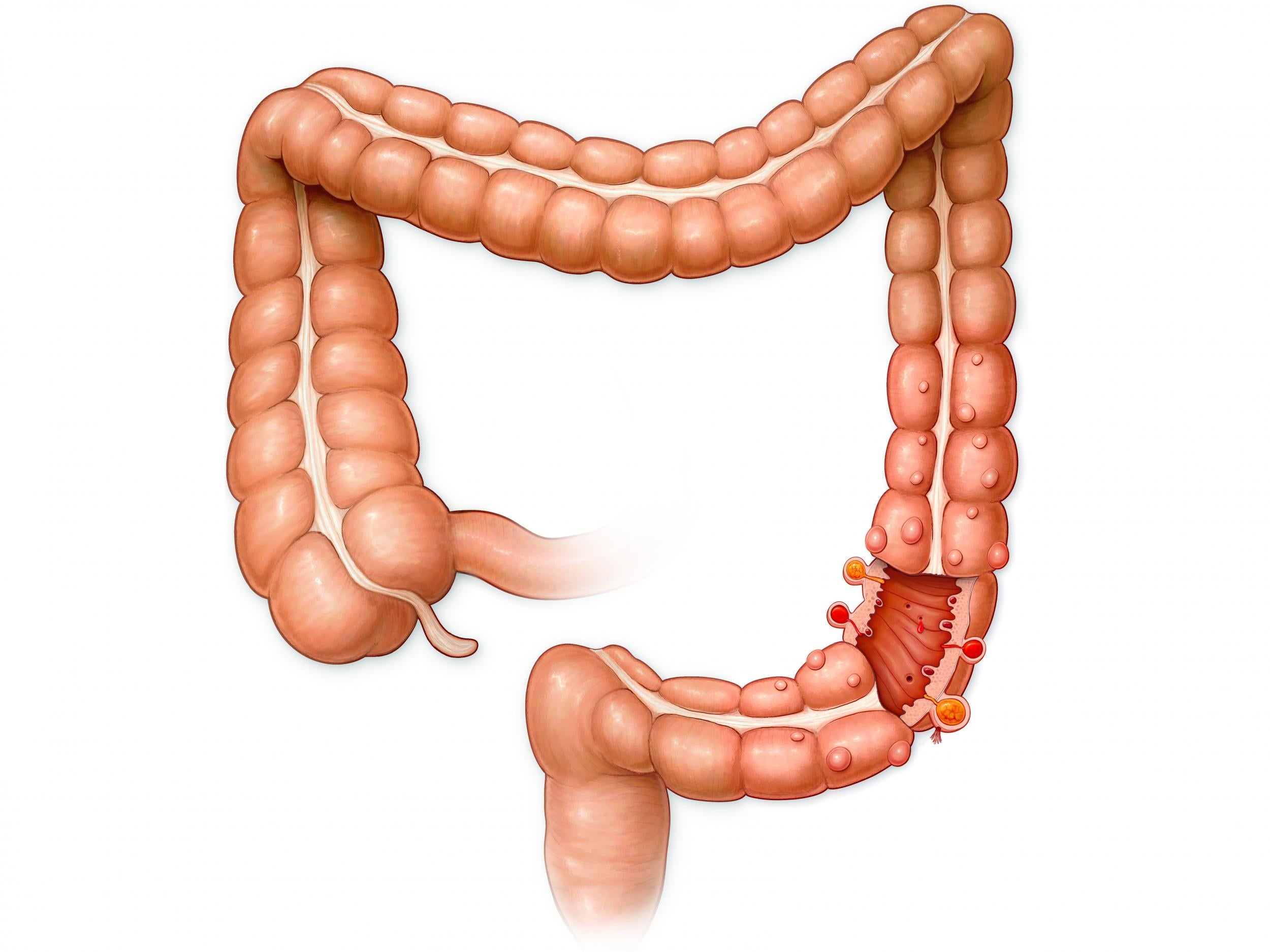 why do we have an appendix? scientists have discovered its purpose, Cephalic Vein