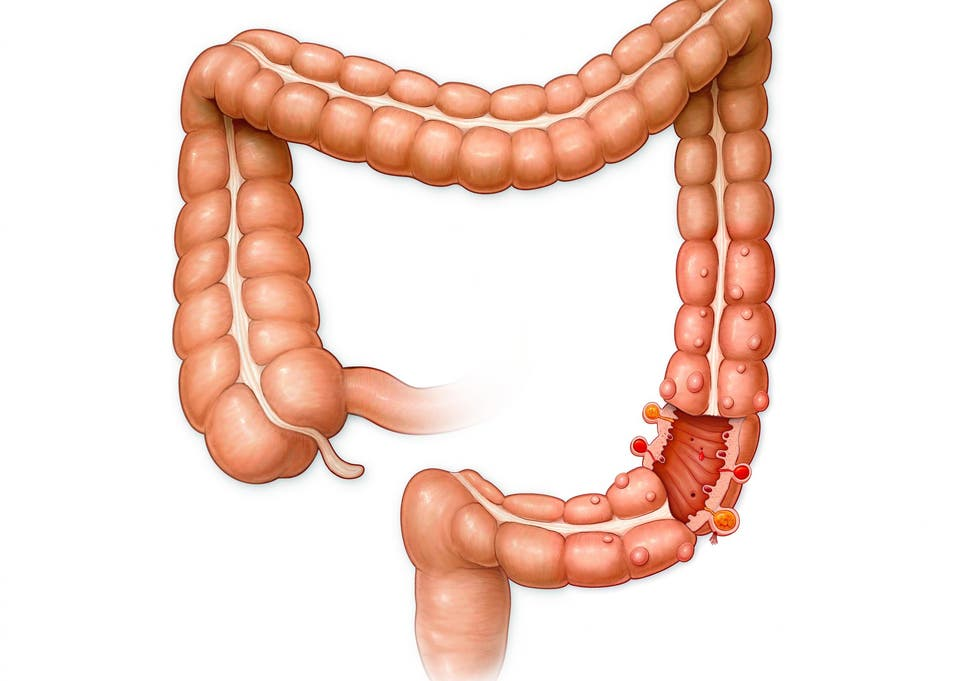 Why do we have an appendix? Scientists have discovered its purpose