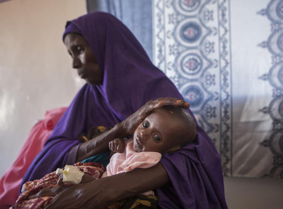 Three-month old Abshir, pictured at Garowe General Hospital in Puntland, Somalia, is suffering from malnutrition-related complications