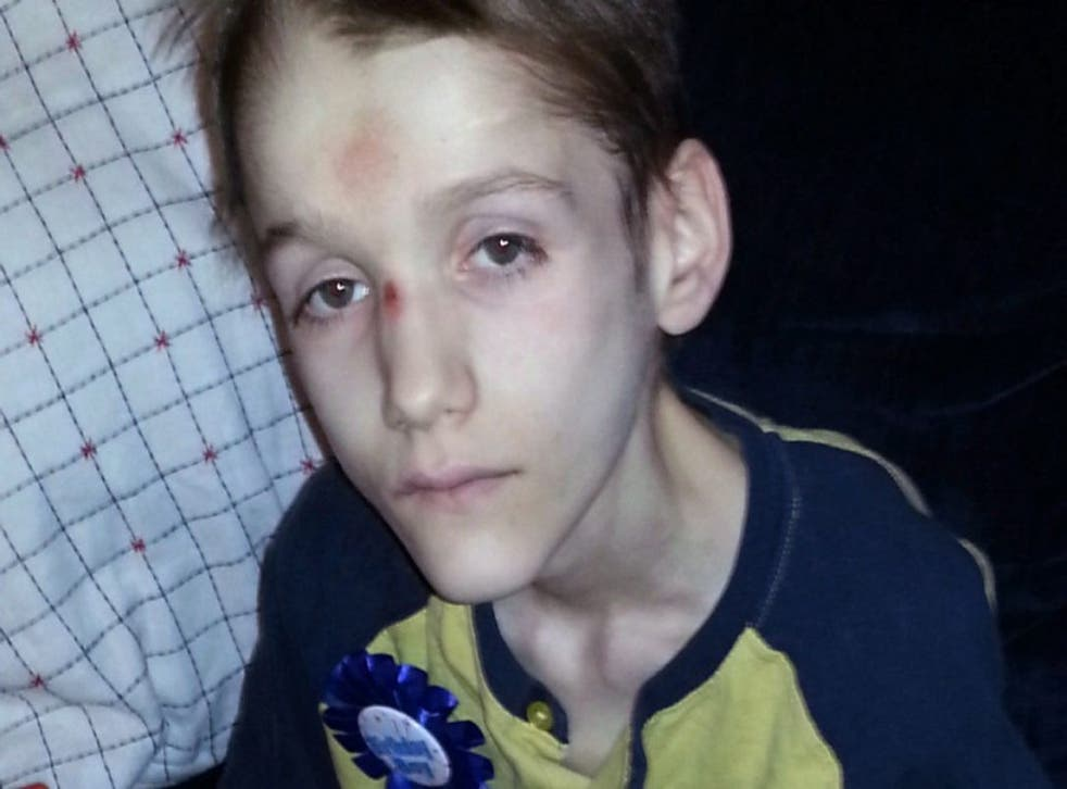 Alexandru, 15, died after suffering for years due to untreated diabetes and starvation