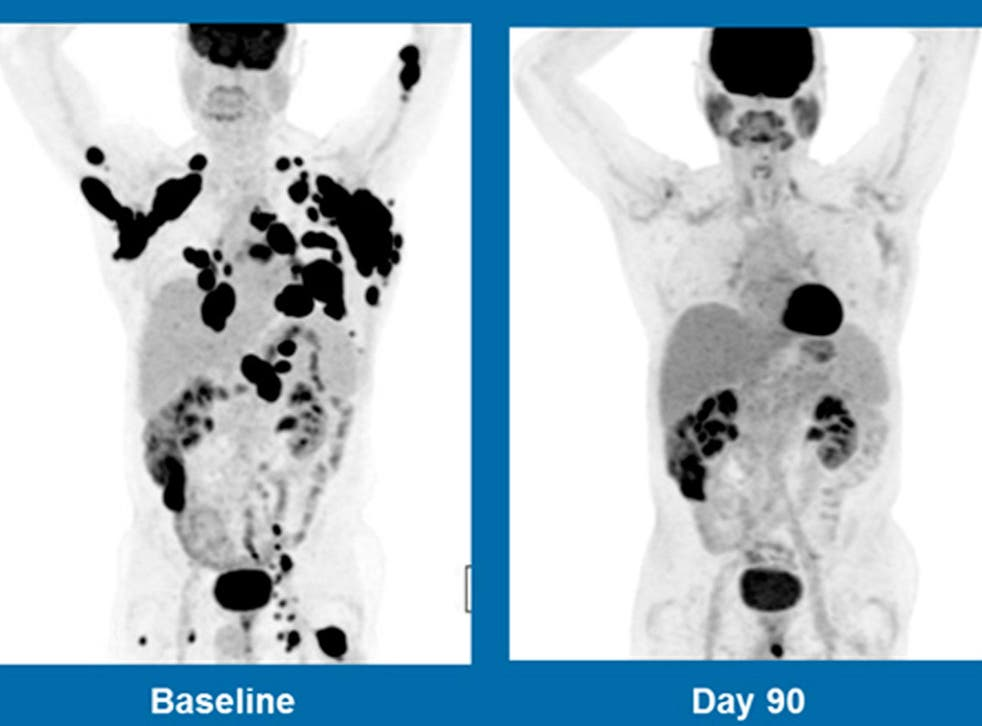 These scans show a 62-year-old man with non-Hodgkin lymphoma. The picture on the left was taken in in December 2015, the one on the right three months after treatment with an experimental gene therapy at the Anderson Cancer Centre in Houston