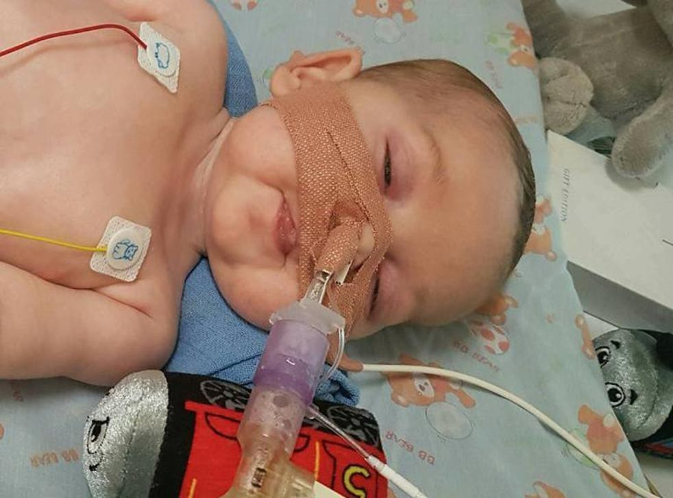 Eleven-month-old Charlie Gard has a form of mitochondrial disease and is ventilator-dependent