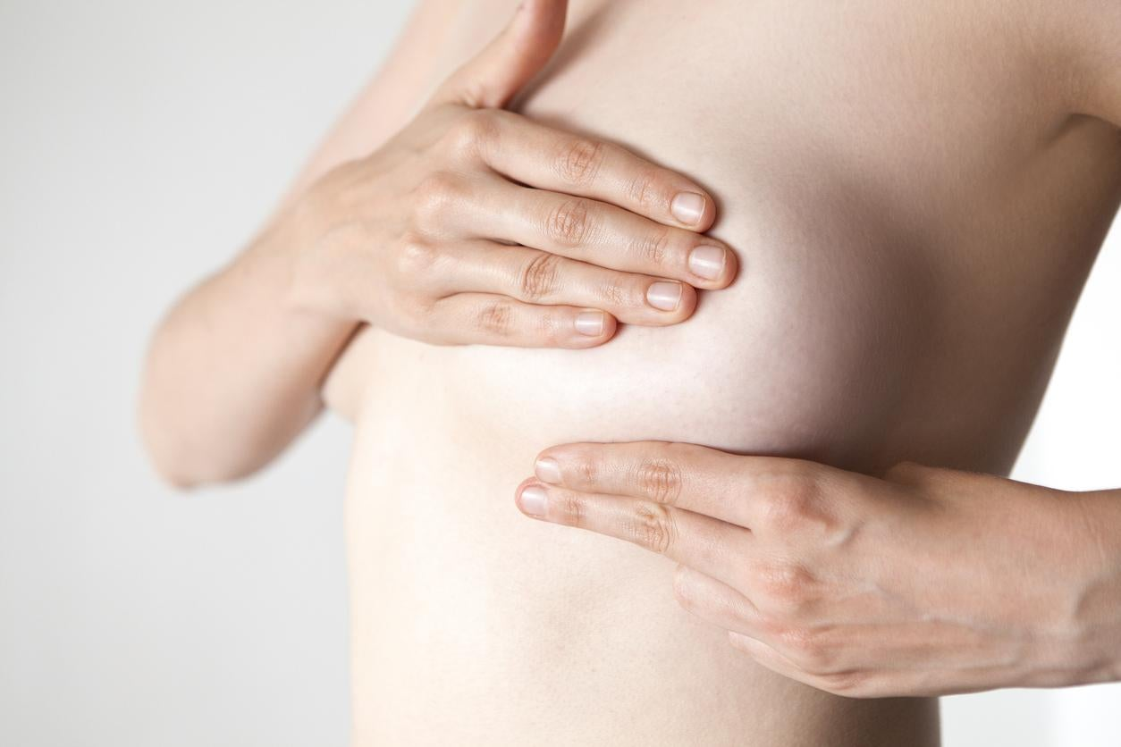 Rare Breast Cancer Disguised As A Rash Is Delaying Diagnosis The