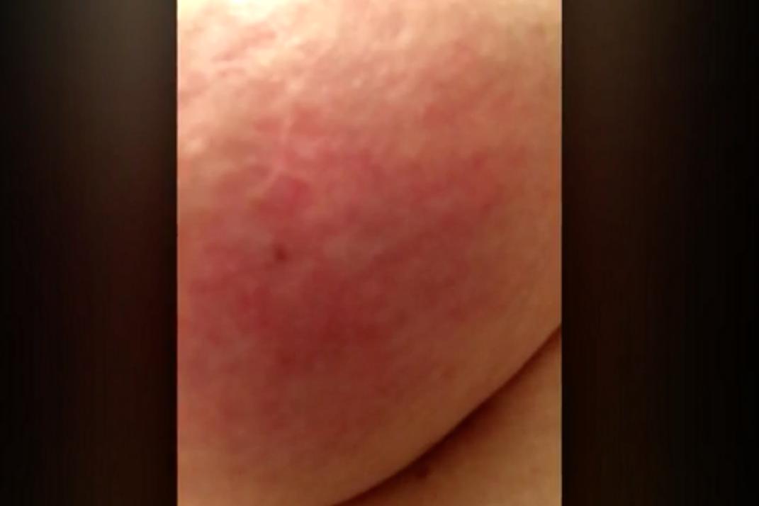 A rash on the breast