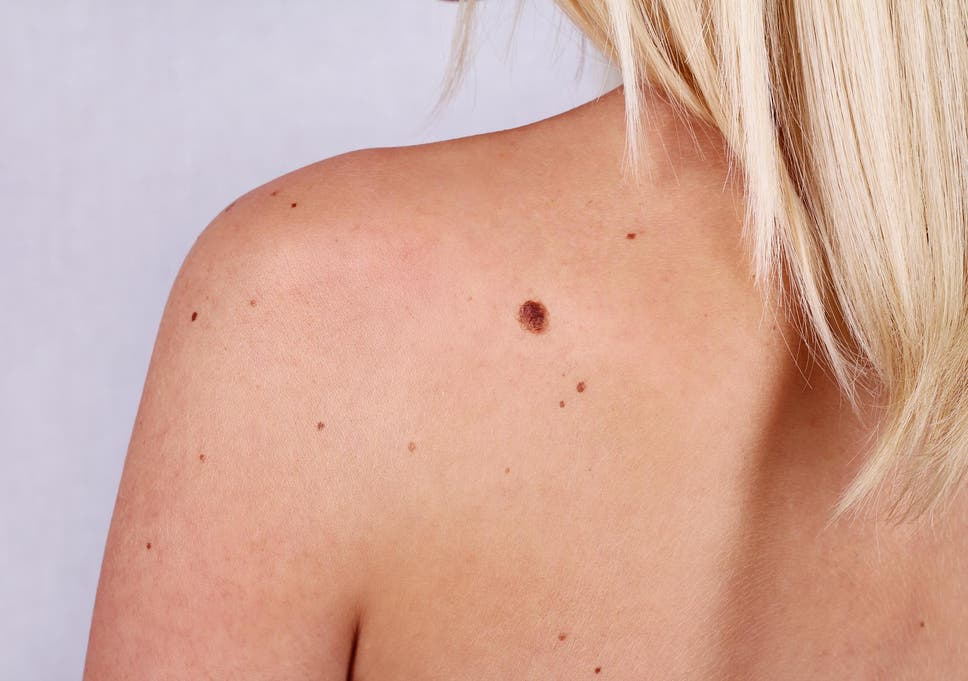 Mole on private part of woman