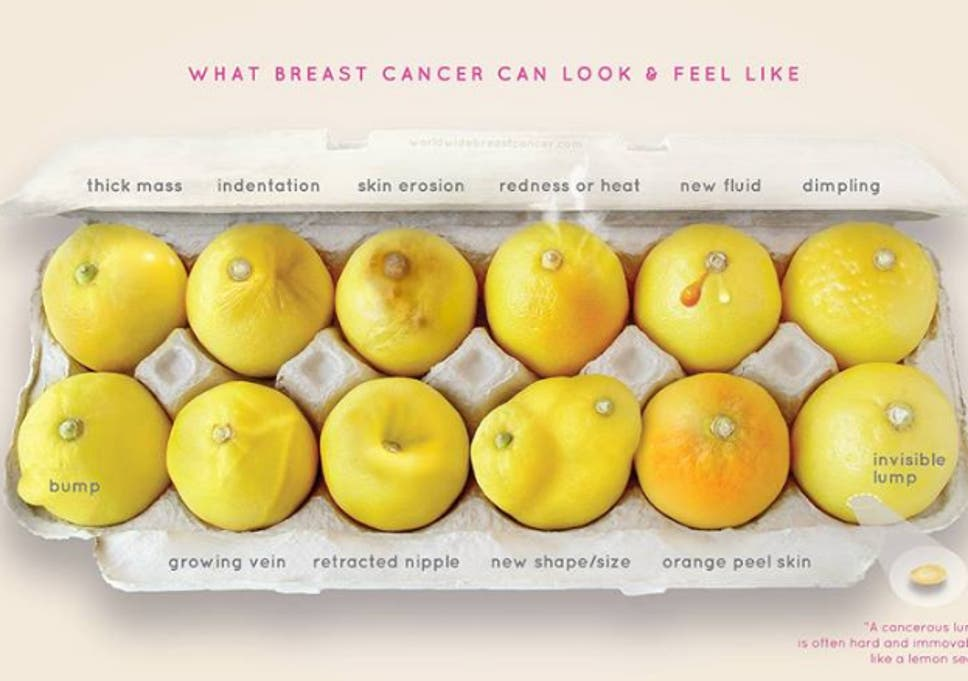 Breast Cancer Indicators Explained Through Lemons The Independent