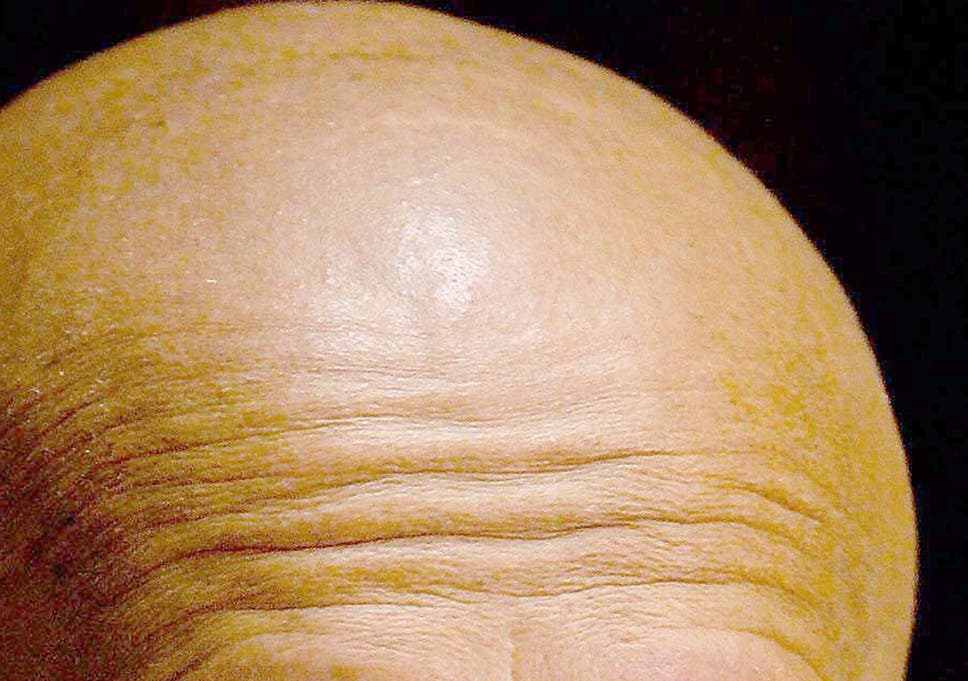 3ddced1dfad New baldness cause accidentally discovered by scientists could lead to hair  loss treatment
