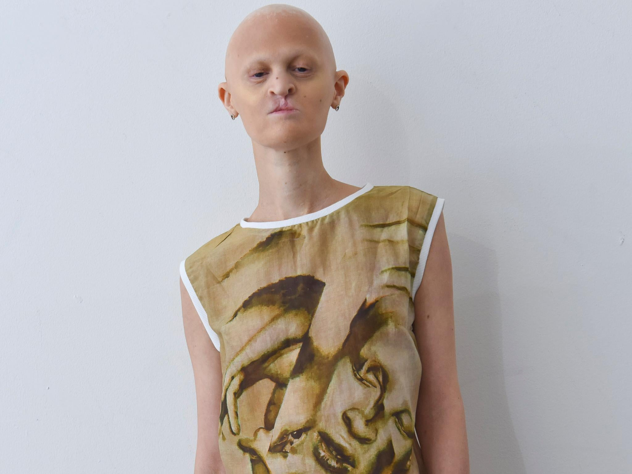 Model Melanie Gaydos Has a Rare Genetic Disorder — and Shes Taking Over the Fashion World