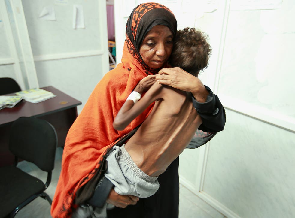 A woman carries her son Imran Faraj, 8 year-old, who is suffering from malnutrition at a hospital in the Red Sea port city of Hodeidah