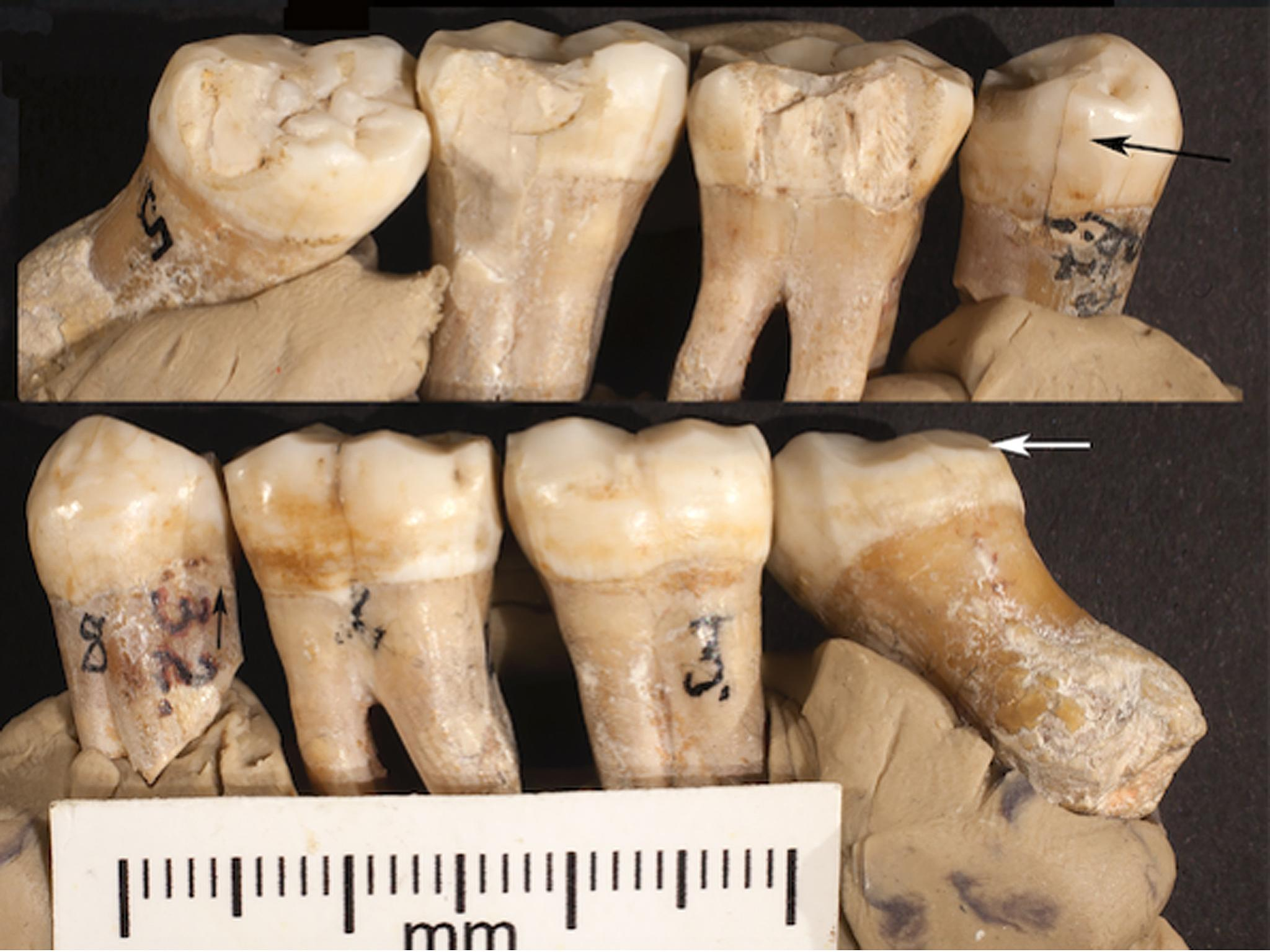 Image result for Neanderthals attempted dentistry 130,000 years ago, believe scientists