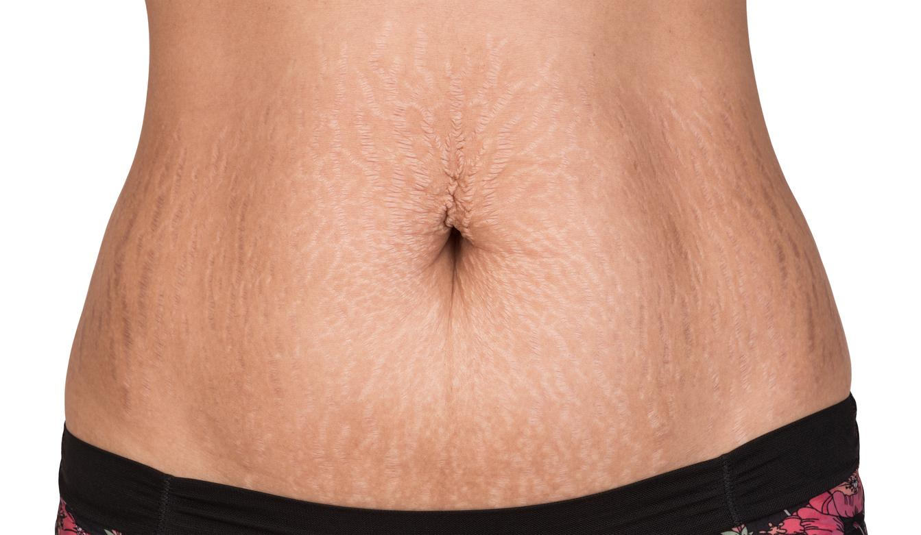 The Rise Of Stretch Marks In Advertising And Why Body Positivity Is