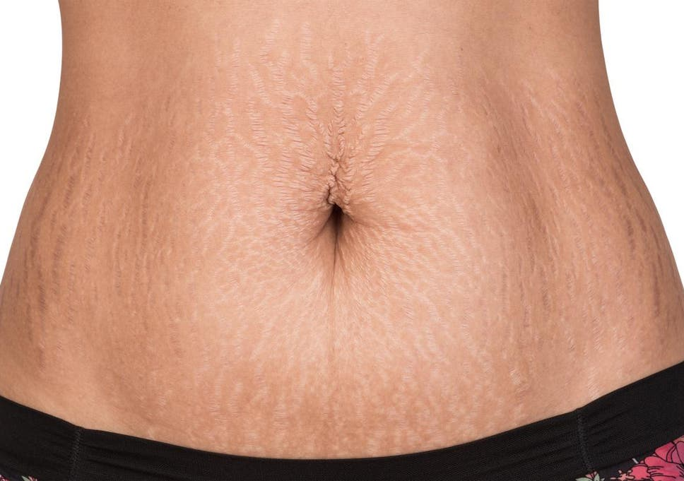 Looking in Stretch Mark Removal Techniques