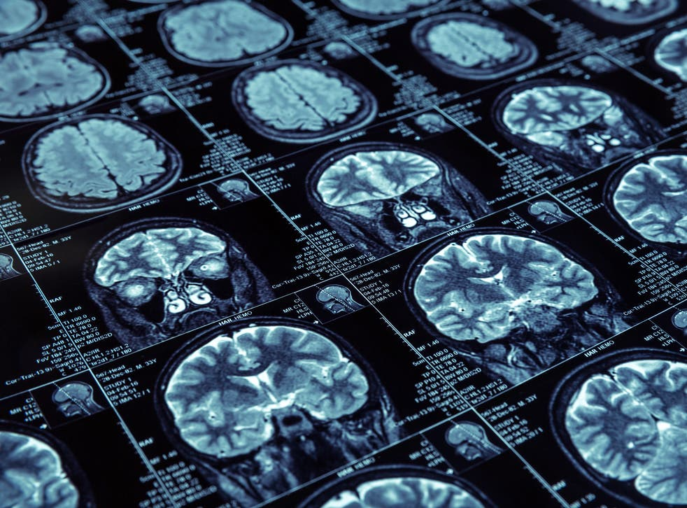 Around 120,000 people are estimated to suffer from Lewy Body Dementia in the UK